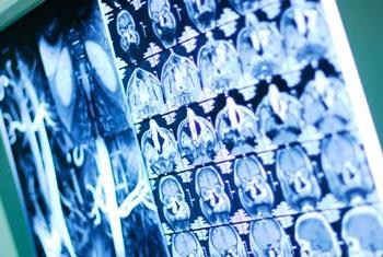 Чем отличается КТ от МРТ? В каких случаях магнитно-резонансная ...
