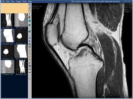 МРТ коленного сустава, сагиттальная проекция
