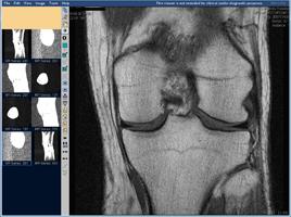 МРТ коленного сустава, фронтальная проекция