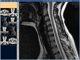 МРТ позвоночника, шейный отдел, сагиттальная проекция