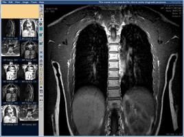 МРТ позвоночника, грудной отдел, фронтальная проекция